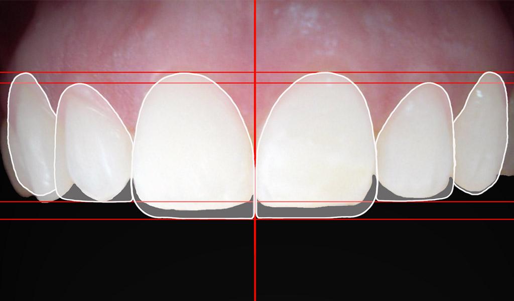 estética dental en Zabalburu - Bilbao